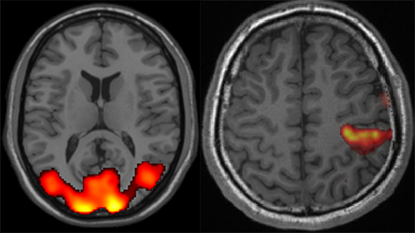 An example of analyzed fMRI image. The active areas are marked in yellow and red.