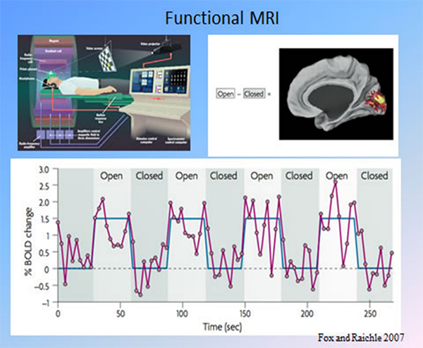 An example of analyzed task-based fMRI.