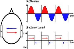 تحریک الکتریکی مغز (8)