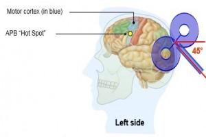 تحریک مغناطیسی فراجمجمه ای مغز (17)
