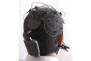 تحریک الکتریکی مغز (19)