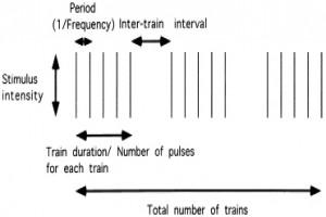 تحریک مغناطیسی فراجمجمه ای مغز (19)