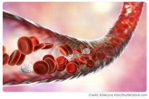آشکار شدن واکنش مغز به آسیبدیدگی عروق خونی توسط تصویربرداری پیشرفتهی سلولی زنده
