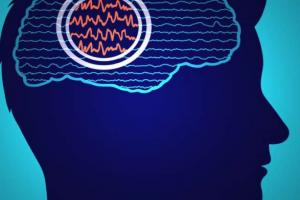 توسعهی روشهایی برای برای شناسایی مناطق منشا تشنج در مغز
