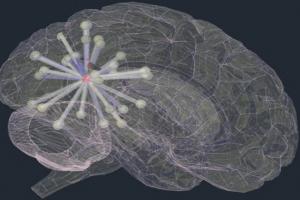 بیماری آلزایمر چگونه در مغز منتشر میشود