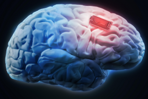 ایمپلنت مغزی ممکن است کلید غلبه بر اعتیاد باشد