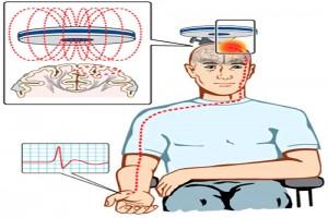 تحریک مغناطیسی فراجمجمه ای مغز (33)