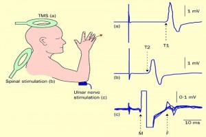تحریک مغناطیسی فراجمجمه ای مغز (34)