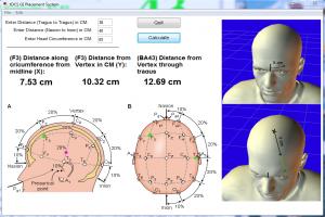 تحریک مغناطیسی فراجمجمه ای مغز (37)