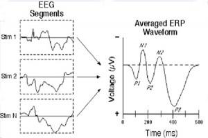 پردازش سیگنال های زیستی - قسمت دوم