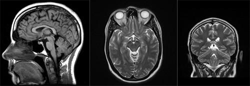 تصویربرداری آناتومیکی مغز