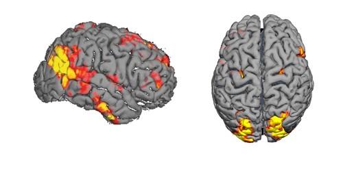 خدمات متداول  fMRI
