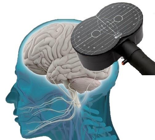 آزمایشگاه تحریک مغناطیسی فراجمجمه ای مغز (TMS)