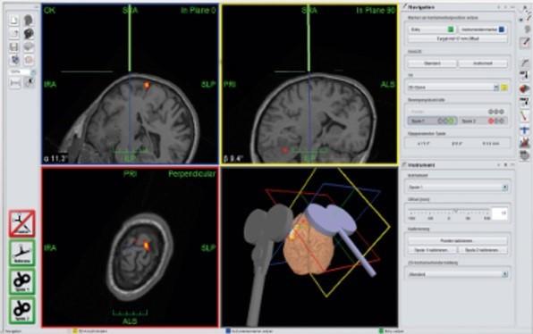 شبیهسازی مغز و تعیین نواحی هدف در سیستم هدایتگر(Navigation) با استفاده از MRI فرد