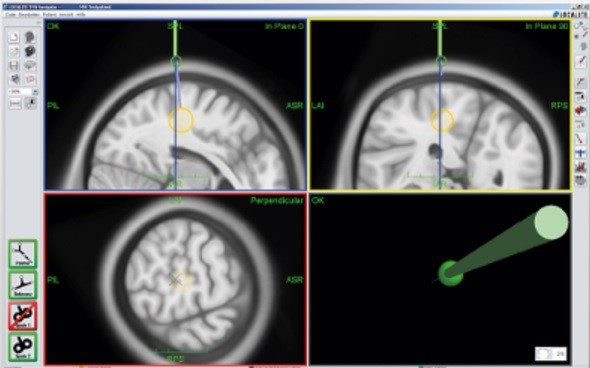 Figure 4: MR-Less Navigation System supports navigated stimulation using MNI atlas, without MRI
