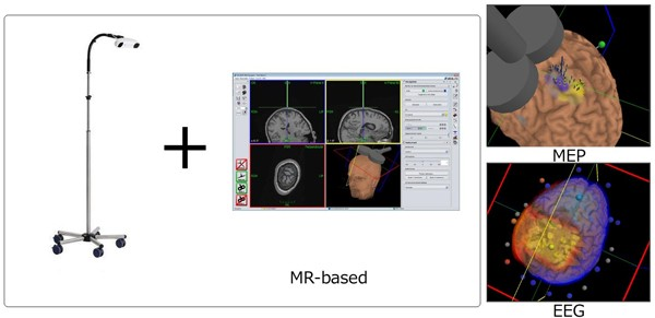 Figure 5: Navigation camera and MEP and EEG projection on the brain in Navigation system