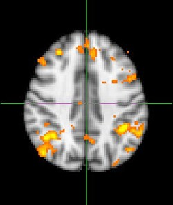 Introduction to fMRI image processing