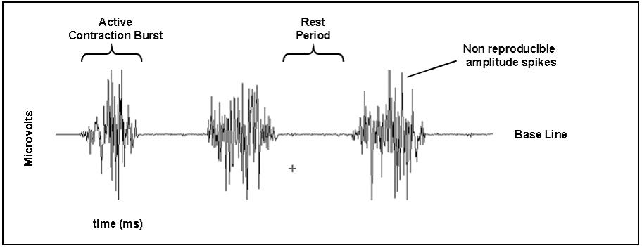 طبيعت سيگنال EMG