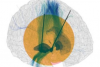 Effects of deep brain stimulation in patients with Parkinson's disease
