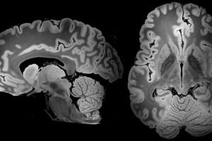 A 100-hour MRI scan captured the most detailed look yet at a whole human brain